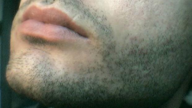 glatze 3mm